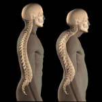 cervicothoracic kyphosis