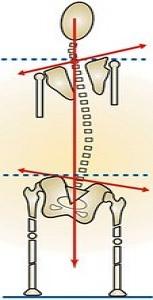 """Résultat de recherche d'images pour """"leg length discrepancy"""""""