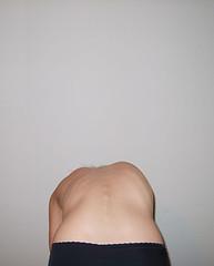 rotated rib